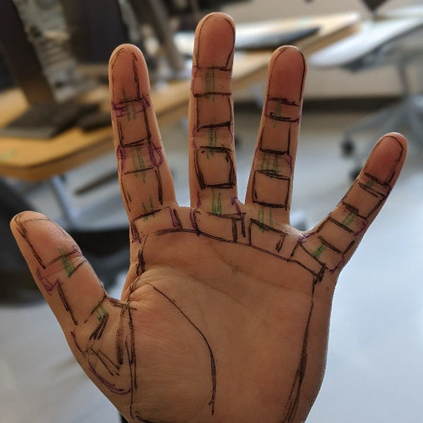 Prosthetic Hand Concept